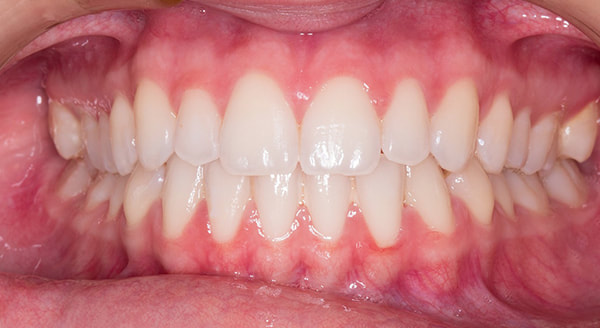 veneers st catharines ontario