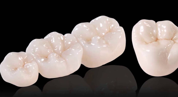 st catharines dental crown cost