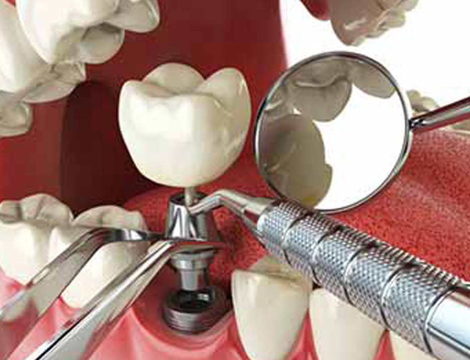 dental implants st catharines ontario