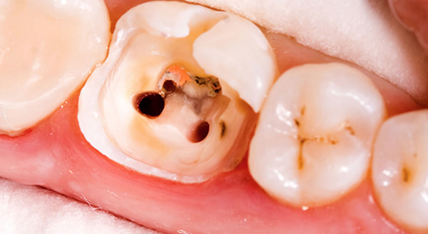 Root Canals - Lakeport Dental
